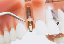 fotografía implantes dentales